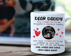 Sonogram gift, Ultrasoiund mug gift for new dad, baby reveal, 1st time dad gift for Father's day Best Dad Gifts, Gifts For New Dads, Gifts For Husband, Gifts For Father, Gifts For Family, Cant Wait To See You, Dad Baby, Appreciation Gifts, Baby Bumps