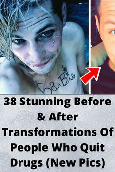 38 Stunning Before & After Transformations Of People Who Quit Drugs (New Pics) Wtf Funny, Funny Jokes, Hilarious, Bridal Makeup Looks, Before After Photo, Amazing Transformations, Parenting Teens, Funny Pins, Nature Pictures