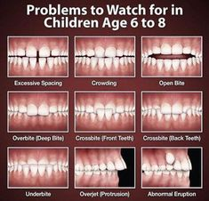 Look out for these dental problems in growing; Get more Updates and offers, Contact, Address, Location, Maps for Complete Dental Solutions Dental Assistant Study, Dental Hygiene School, Dental Humor, Dental Hygienist, Dental Implants, Dental Surgery, Dentist Jokes, Oral Hygiene, Dental World