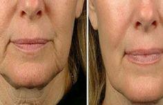 Même si notre peau ne montre pas encore de signes de l'âge, il est bon de commencer à utiliser ces traitement le plus tôt possible pour avoir une peau ferme et douce le plus longtemps possibl…