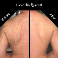 Trying to find a painless and easier alternative for getting rid of unwanted hair? Our ELôs Motif Technology is a laser hair removal treatment, that destroys hair follicle from the roots and preventing it from growing back again and the best part it's painless.  For more information or to schedule a free consultation call us at 305-608-4922  #DrAl #relaxspa #wellness #hairremoval #skincare #aging #miami