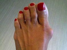 Profesionální ortopedická léčba Foot Fix Pro proti vbočeným palcům Mani, Medicine