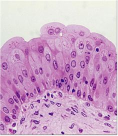 transitional epithelium in bladder
