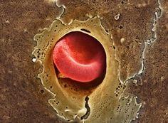 Эритроцит протискивается через капилляр