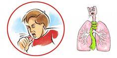 Сезон простудных заболеваний уже наступил. И кашель — его неотъемлемая часть, но как же он бывает не...