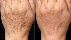 Get rid of the stains on your hands and feet instantly!- Elinizdeki ve Ayağınızdaki Lekelerden Anında Kurtulun! Get rid of the stains on your hands and feet instantly! Acne Scar Removal Treatment, Back Acne Treatment, Age Spots On Face, Age Spot Removal, Types Of Acne, Piel Natural, Younger Skin, Layers Of Skin, How To Get Rid Of Acne