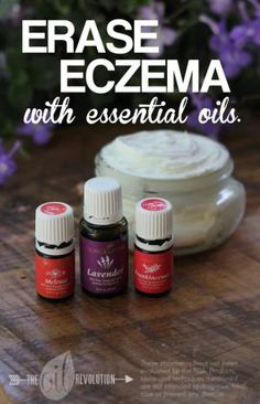 ECZEMA CREAM WITH ESSENTIAL OILS by susie cross