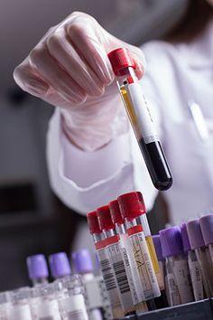New computational model will aid in study of blood clots, biofilms - http://scienceblog.com/77535/new-computational-model-will-aid-in-study-of-blood-clots-biofilms/