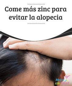 Come más zinc para evitar la alopecia ¿Estás sufriendo por la caída de cabello? Seguro has probado muchos tratamientos y no han dado los resultados que esperabas. Pero no te desanimes. Quizás el problema se debe a tu alimentación.