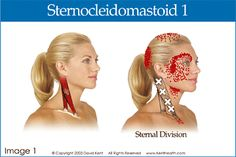 headache, myofacial, referred pain patterns