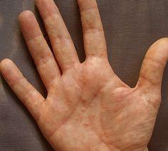 dyshidrotic eczema pictures 4