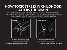 Toxic stress of poverty, violence, pain alter kids' brains Stress And Health, Brain Health, Kids Health, Mental Health, Public Health, Adverse Childhood Experiences, Trauma Therapy, Obsessive Compulsive Disorder, Social Emotional Learning