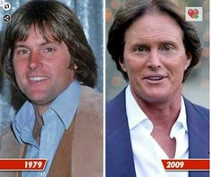 Before and After Plastic Surgery - Bruce Jenner