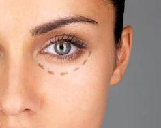 Watch under eye circles go away with just a needle.