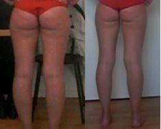 Endlich cellulitefrei: Mein Kampf für straffe Beine! Das hilft! Sport Videos, Cellulite Exercises, Home Treatment, Health Fitness, Beauty, Training, Shapes, Good To Know, Skin Firming