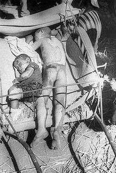 Children in Nagasaki suffering after the bombing Creepy Images, Creepy Photos, Nagasaki, Hiroshima, Old Pictures, Old Photos, Vintage Photos, Japan Nuclear, Medical Photos