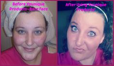 Just look at how well Younique products cover my rosatia!! Get yours at www.Lashtastic-Inc.com