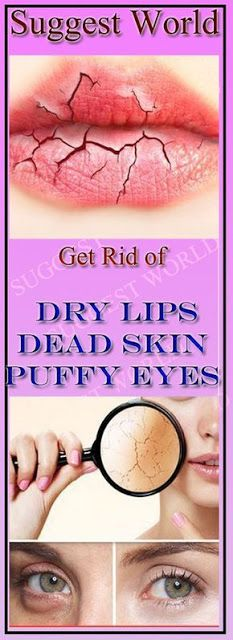 Get Rid of dry lips, dead skin or puffy eyes