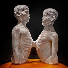 Plaster cast of Chang and Eng, the most famous siamese twins in the world. On exhibit at the Mutter Museum, Philadelphia, the most amazing pathology museum in the world! Human Zoo, Clown Horror, Evil Clowns, Philadelphia Museum Of Art, Roadside Attractions, Medical Illustration, Horror Films, American Horror Story, Art Museum