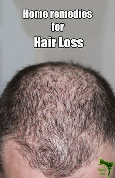 10 Natural Remedies For Hair Loss (Alopecia Areata) - #hairlosstreatment #BiotinForHairLoss