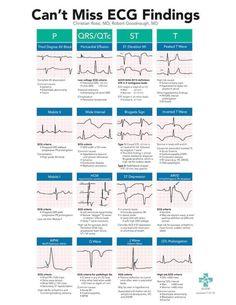 A high yield, on-shift resource to help Emergency Department providers spot subtle, high-risk ECG findings in Cardiac Nursing, Nursing Mnemonics, Pathophysiology Nursing, Triage Nursing, Nicu Nursing, Med Surg Nursing, Medical Surgical Nursing, Pediatric Nursing, Ecg