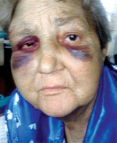 hospital pictures of bruises - Google Search Cuts And Bruises, Hospital Pictures, Practical Life, Real Life, Facial, Image, Google Search, Facial Treatment, Facial Care