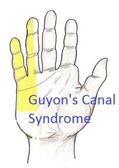 Guyon's canal borders, sensory and motor branches of the ulnar nerve in the canal, pictures Ulnar Nerve Entrapment, Cubital Tunnel Syndrome, Carpal Tunnel Relief, Chest Workout Routine, Natural Cure For Arthritis, Hand Injuries, Nerve Pain, Anatomy And Physiology, Occupational Therapy