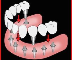 How Much Should Dental Implants Cost?