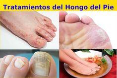 pies apestosos y diabetes