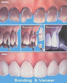 14 best tooth bonding images on pinterest dental care dental dental bonding solutioingenieria Gallery