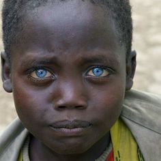 Sweet little boy with seemingly sad blue eyes from Ethiopia