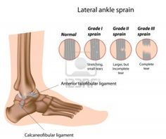 Ankle sprain swelling treatment grade 3 ankle sprain,how serious is a sprained ankle mild ankle sprain recovery time,severe ankle sprain treatment sprained ankle injury time. Torn Ligament In Ankle, Ankle Ligaments, Ligament Injury, Ankle Joint, Ankle Sprain Recovery, Severe Ankle Sprain, High Ankle Sprain, Ankle Injuries, Ankle Sprain Grades