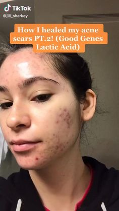 Clear Skin Fast, Clear Skin Tips, Acne Skin, Oily Skin, Haut Routine, Healthy Skin Tips, Best Acne Treatment, How To Get Rid Of Acne, Face Skin Care