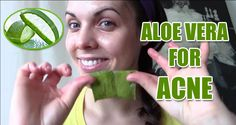 Aloe vera for acne has been used traditionally in many cultures. You can apply aloe vera gel topically or consume it internally. When using aloe vera for acne topically, mix it with some other ingredients to make effective masks for acne. Source: 9 Simple Ways to Use Aloe Vera for Acne