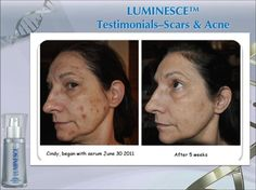 Before and after using luminesce.