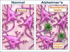 too many people think of Alzheimers purely as a mental illness, and it is first of all a biological, clinical illness that has not yet been solved by modern medicinal sciences