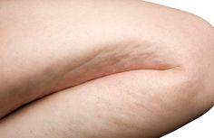 Des exercices simples pour éliminer la cellulite