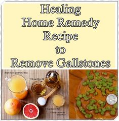 b542b780137c8 222 Best * Natural Healing and Herbal Remedies images in 2019 ...