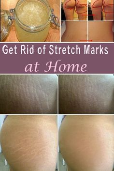 Get Rid of Stretch Marks at Home