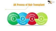 We have created a short video to explain the patients about hair transplant. It is a very basic information about hair transplant and should be taken in the spirit of general information only.