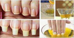 Como estão as suas unhas? Elas estão frágeis e crescendo lentamente? Esta receita vai ser a solução do problema. Pode acreditar.