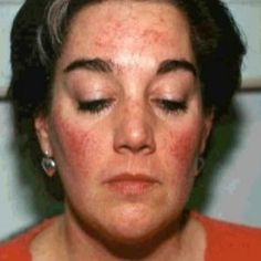 Natural Cures for Rosacea