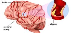 Plaques In The Brain Can Affect The Heart