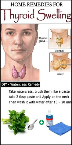 Home Remedies for Goiter - Learn how to prevent and treat goiter at home, using simple remedies..