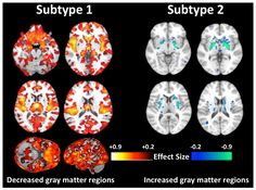 New research has analyzed hundreds of brain scans from patients with schizophrenia revealing two distinct subtypes with differences in gray matter volumes, busting the previously held notion that all schizophrenia patients' brains are the same. Different Types Of Schizophrenia, People With Schizophrenia, Schizophrenia Diagnosis, Internal Capsule, Mri Brain, Machine Learning Methods, Basal Ganglia, Brain Structure