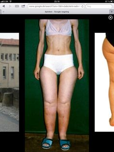 Lipedema Google image Perfect Image of Lipoedema this women has anorexia and still has fat legs!
