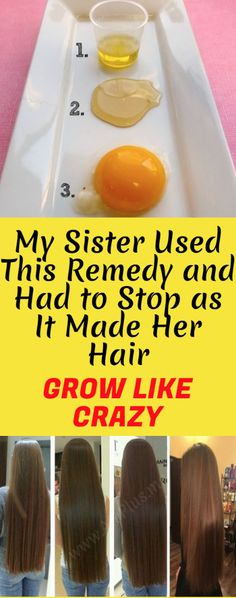 My Sister Used This Remedy And Had To Stop as it Made Her Hair Grow Like Crazy! [Instruction Included] – Toned Chick My Sister Used This Remedy And Had To Stop as it Made Her Hair Grow Like Crazy! Natural Hair Care, Natural Hair Styles, Long Hair Styles, Natural Shampoo, Natural Red, Best Shampoo For Hair, Natural Beauty, Hair Loss Reasons, Hair Remedies For Growth