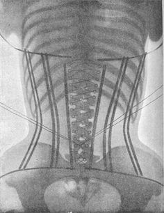 X-Ray image of a corset, 1908.