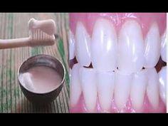 Foi Isto Que Ela Usou Para Clarear Os Dentes, Eliminar Tártaro E Curar Gengivite Sem Gastar Nada! - YouTube