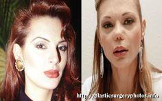 Carmen Campuzano with plastic surgery